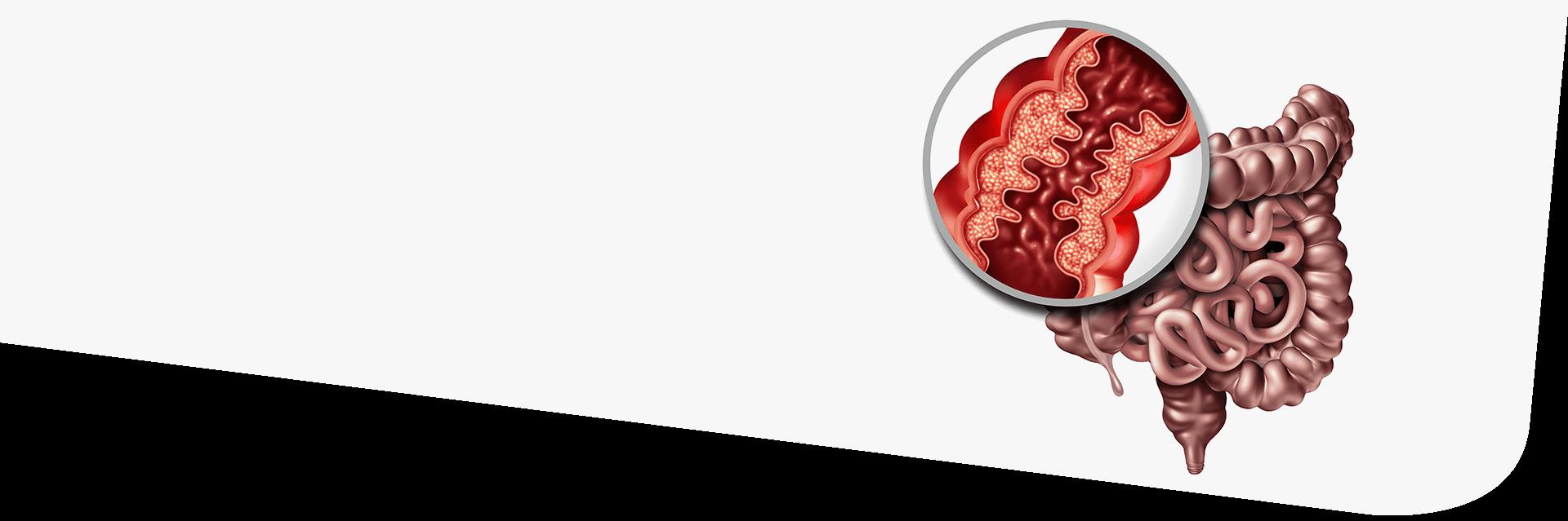 crohn-disease-bg